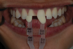 The custom shade tab shows a close match to tooth 2.1.