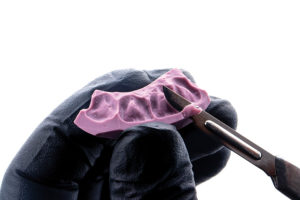 Trimming the putty matrix with a scalpel for precision.