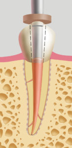 . Back filling. Needle tips for the Gutta SmartTM cordless obturation system are available in sizes #20, #23, and #25 gauges. Additional root canal sealer may be placed in the coronal aspect of the root canal with a hand file or paper point prior to back filling. 4-7 mm increments of gutta percha are injected into the canal space then immediately condensed with the pre fitted stainless steel hand NiTi pluggers in sequence using the sequentially larger pluggers as the coronal aspect of the canal is approached. As thermosoftened gutta percha is deposited in the canal, backpressure is produced and the needle tip (Flow device) is forcibly extruded from the canal space. It is essential that the operator continue injecting as the needle tip is retrieved from the canal in order to avoid inadvertent removal of the newly deposited gutta percha mass prior to condensation.