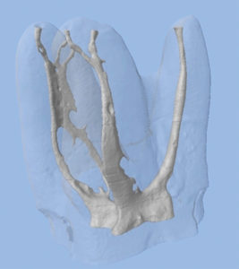 Microcomputed tomography 3D reconstruction of a maxillary molar, illustrating the root canal system's complex anatomy. These areas must be cleaned of their organic debris and bacterial contaminants by thorough irrigation protocols and then subsequently three dimensionally sealed with thermosoftened gutta percha. Courtesy of Dr. Ronald Ordinola Zapata, Brazil.