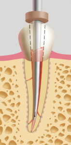 Sustained apical condensation. The activation cuff on the Pack device should be released once within 3-4 mm of the apical binding point. The plugger should slow and stop within 2 mm short of the binding point. Apical pressure is maintained for a full 10 second ''sustained'' push to prevent the cooling gutta percha mass from shrinking.
