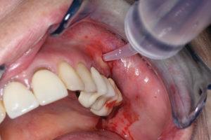 Monojet® syringe used to irrigate inside incision site.