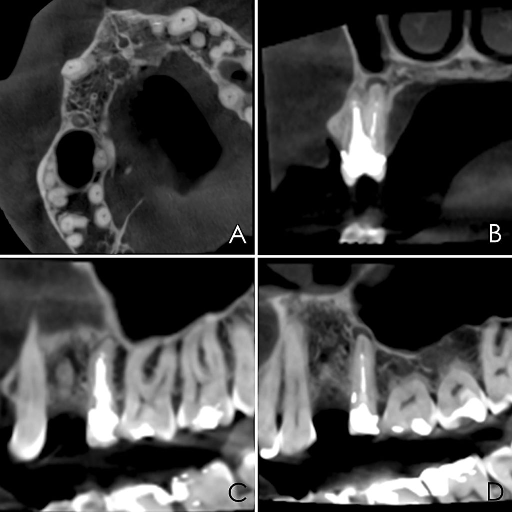 1. Pre-surgical cbCT. A. Axial view. B. Coronal view. C. Sagittal view of buccal root. D. Sagittal view of palatal root.