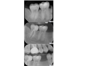 (Case of Dr. Dale Jung). Example of caries leveraged access design. The tooth is immediately restored at the time of obturation B & C.