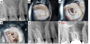 (Case of Dr. Viraj Vora) Stepped access in an upper molar with direct restorative material A & B. A larger outline through restorative material is cut to allow unobstructed access to the underlying dentin C & D. The tooth is immediately restored at the time of obturation E. The patient is asymptomatic and functional at the two-year follow-up F.