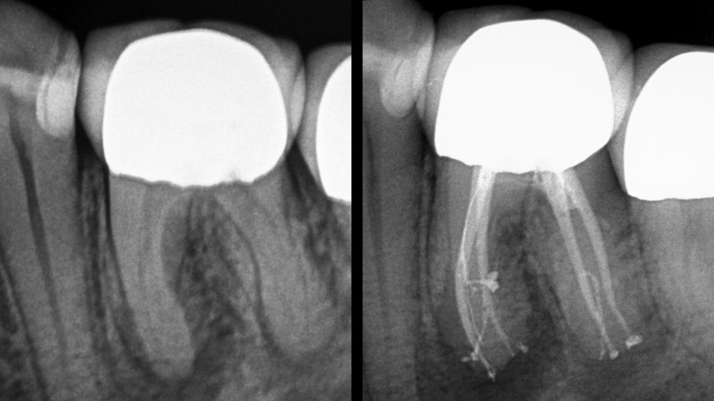Clinical endodontics by Dr. Reid Pullen (Brea, Calif) shows two elegant results, both heading down the road of predictable healing. Reid understands that different treatment technologies are case specific