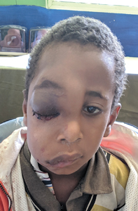 Child with a facial tumor NYD causing monocular blindness.