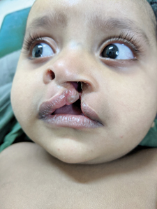 Infant with an unrepaired cleft lip.