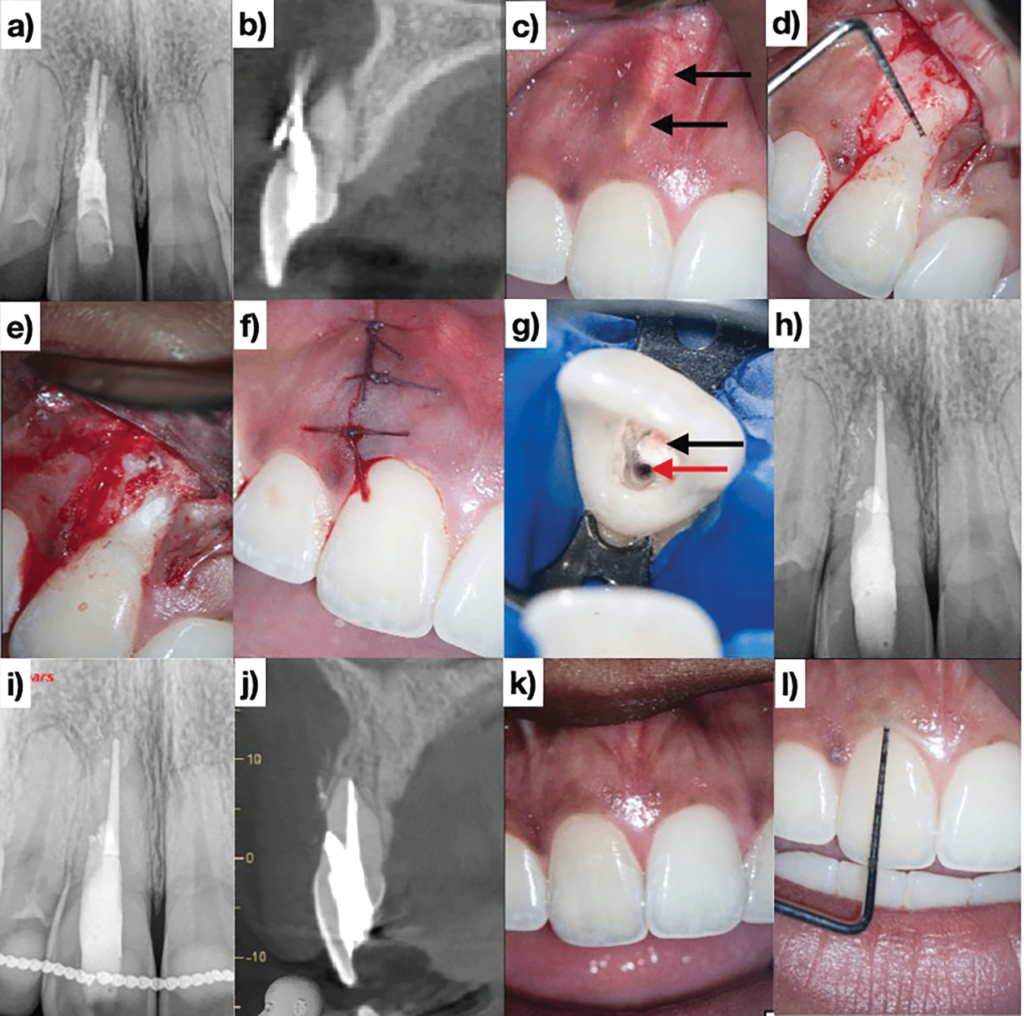 (Case of Dr. Viraj Vora). The cingulum access using round burs promotes facial gouging and perforation