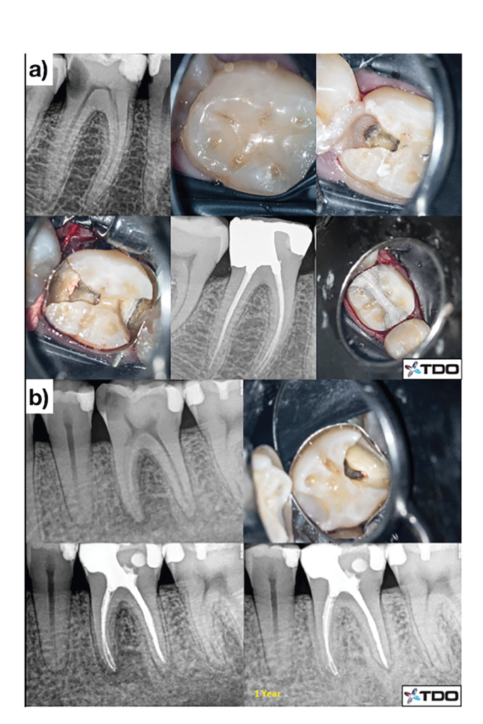 (Cases of Dr. Viraj Vora). Examples of mesialized and distalized caries/restorative leveraged access designs. The teeth are immediately restored at the time of obturation. One-year follow-up shows radiographic healing despite the conservative instrumentation and maintenance of over half of the pulp chamber roof B.