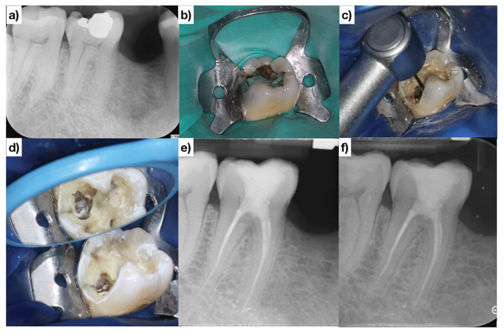 (Case of Dr. Dale Jung). The restorative material B. is leveraged leading to a buccally positioned access cavity C & D. The tooth is immediately restored at the time of obturation E. The patient is asymptomatic and functional at the one-year follow-up F.