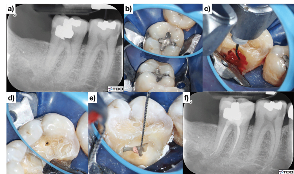 (Case of Dr. Dale Jung). The carious lesion is leveraged leading to a lingually positioned access cavity C. A separate access hole is created on the occlusal surface to gain access to the buccal canals D. A bent instrument is used to clean under the pulpal roof E. The tooth is immediately restored at the time of obturation F.