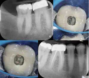 (Case of Dr. Dale Jung). Stepped access: a larger access outline is cut into crown material until dentin is reached. The pulp is penetrated conservatively based on its anticipated location. The tooth is immediately restored at the time of obturation.