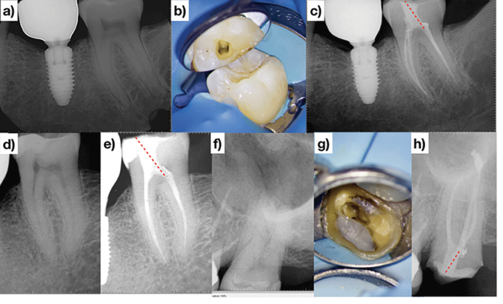 (Cases of Dr. Bobby Nadeau). Access design of the minimally/non-restored posterior teeth can involve penetration at the level of the mesio-buccal pulp horn and subsequently extended as needed. Straight-line access to the distal canals projects coronally in the mesial direction (red dotted lines) C, E & H. Note the mesial position and angulation of the restored access cavities C, E & H.
