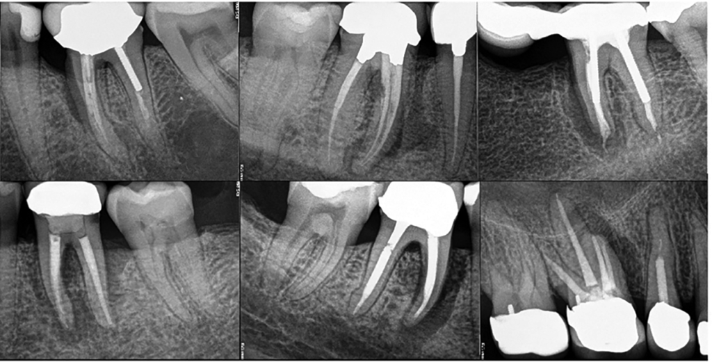 Vertical root fractures (VRF) associated with overzealous root canal shaping.