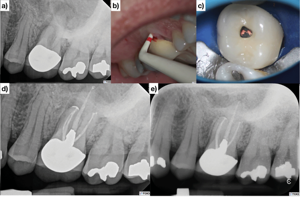 (Case of Dr. Dale Jung). Upper left first molar with a 12mm probing A & B. The canals are minimally instrumented and the access is immediately restored at the time of obturation D. The patient is asymptomatic and functional, the deep probing is healed and there is radiographic healing at the three-year follow-up E.