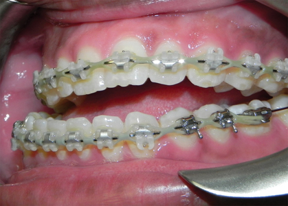 Lateral view of preoperative malocclusion.