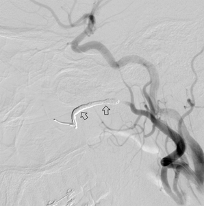Left internal maxillary artery post embolization with endovascular coil