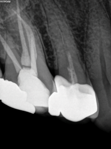 Pre-operative periapical radiograph of maxillary right second premolar after an previous emergency root canal treatment