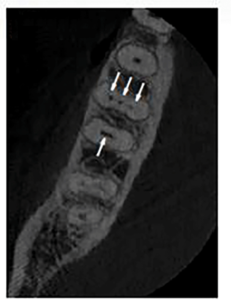 An axial slice of a high resolution CBCT scan revealed four root canal systems (arrows). Three root canals in the mesial root and one large oval root canal in the distal root