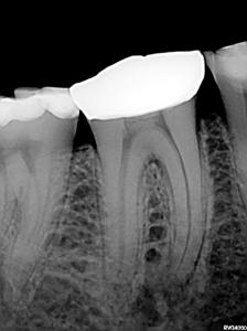 Pre-operative periapical radiograph of mandibular right first molar
