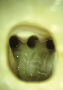 Magnified view of the pulp chamber floor. Note the large amount of tooth structure that was still intact after root canal preparation with the TruNatomy Small file