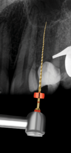 Root canal preparation with the TruNatomy Prime instrument