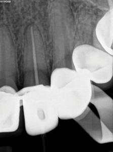 Pre-operative periapical radiograph of maxillary left lateral incisor