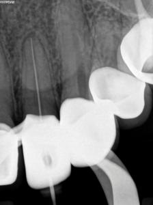 Conefit periapical radiograph