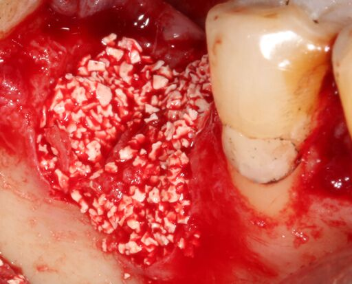 Socket has been filled with T-Oss which rehydrates from host bleeding at the site.