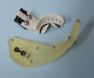 Yomi patient splint, shown with contrasting insert and fiducial array.