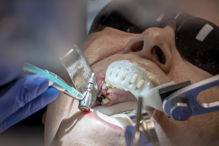 Implant placed to depth with Yomi robotic guidance.