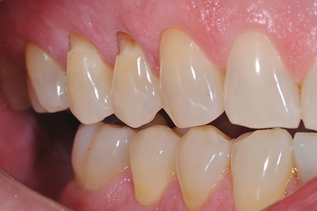 Before and after images of Cl V restorations using Fit SA (Courtesy of Dr. Jack Griffin).