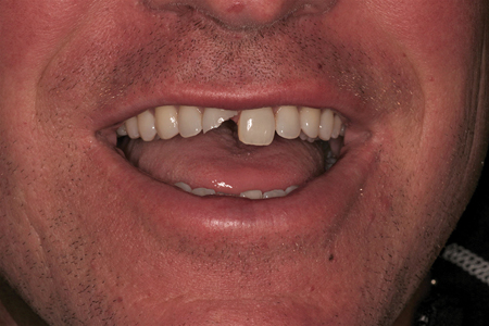 Fractured maxillary right central incisor as a result of an injury during an adult hockey league.