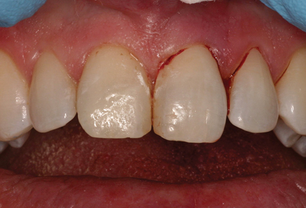 Final Class IV composite restoring the fractured maxillary right central incisor.