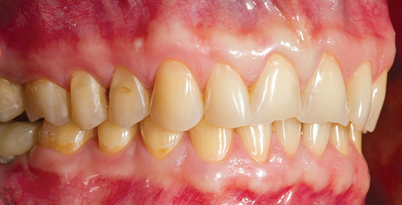 Abrasion and attrition of dental surfaces.
