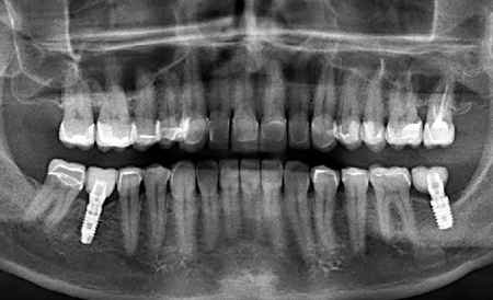 Pre- and post-op panoramic radiographs indicating the vitality of the teeth.