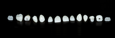 Different types of possible ceramic restorations.
