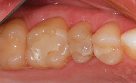 A preoperative view of 16,15, and 14 prior to preparation for indirect ceramic replacements due to marginal breakdown and recurrent decay.