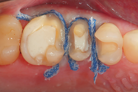 """Retraction cord (Ultrapak: Ultradent) is """"laid"""" into the trough created by the laser to deflect any tissue tags that may remain after the troughing procedure. 4. An occlusal view of the retraction around the preparations prior to capturing the optical impression."""