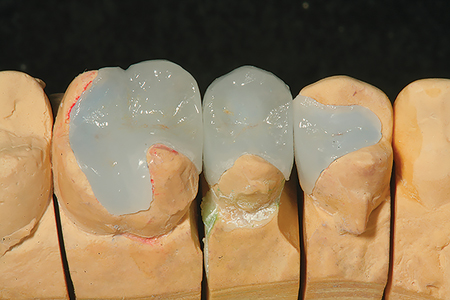 The model and master dies created from a polyvinyl siloxane impression is shown with the completed ceramic restorations in place.