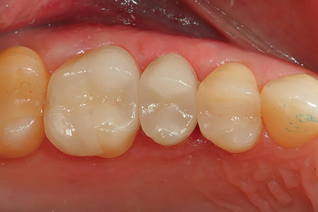 An occlusal view of the ceramic restorations after cementation.