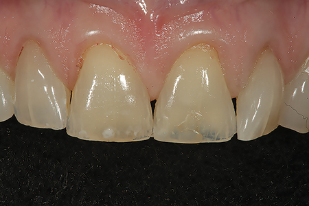 A facial preoperative view is shown of tooth numbers 11 and 12 prior to preparation for full coverage ceramic restorations. The teeth had excessive palatal wear due to occlusal considerations thinning and weakening the remaining tooth structure.
