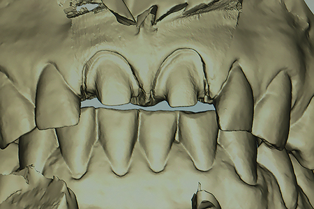 A view of the scanned impression of the preparations from the facial aspect. Note the amount of retraction present for clear visibility of the root surfaces of the prepared teeth.
