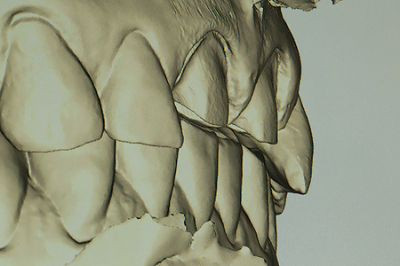 This lateral view is shown after the image was rotated to evaluate clearance between the preparation and opposing incisal edges.