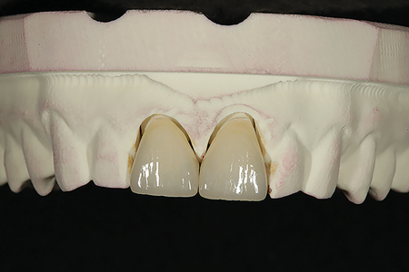 The completed ceramic restorations are shown on the digital model prior to placement. (restorations created by DAL Ancer Dental Laboratory: Chicago, IL).