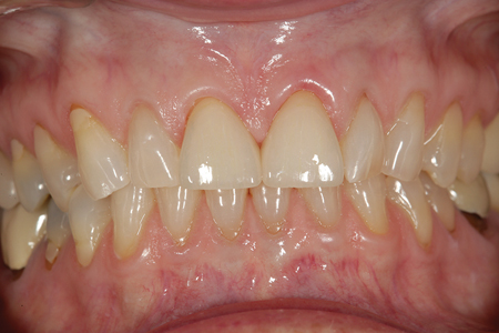 A retracted full-frontal view of the case in centric occlusion after cementation.