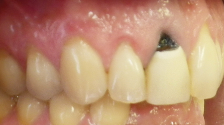 A 40-year old male, heavy smoker, but otherwise in excellent health, presented with a mobile and sensitive upper right central incisor.