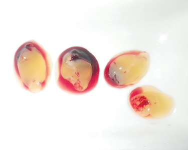 The Platelet-Rich Fibrin (PRF) was withdrawn, and the attached red blood cells removed. PRF is dense fibrin biomaterial with bio-mechanical properties. A high-density fibrin clot can serve as a biological healing matrix by supporting cell migration and cytokine release