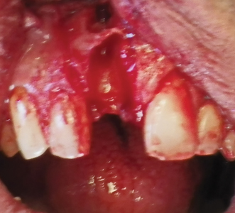 pon removal of the root fragment, significant damage to the buccal bone plate was observed.